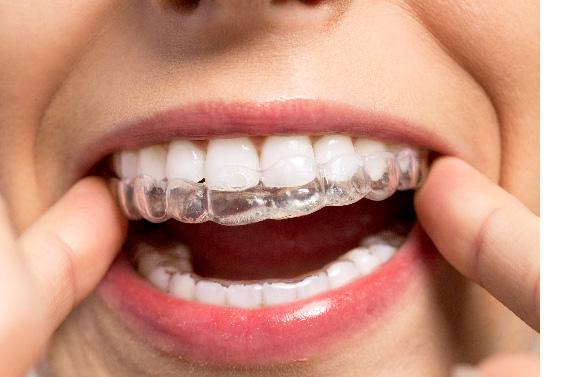 Retrouvez le sourire avec l'orthodontie invisible